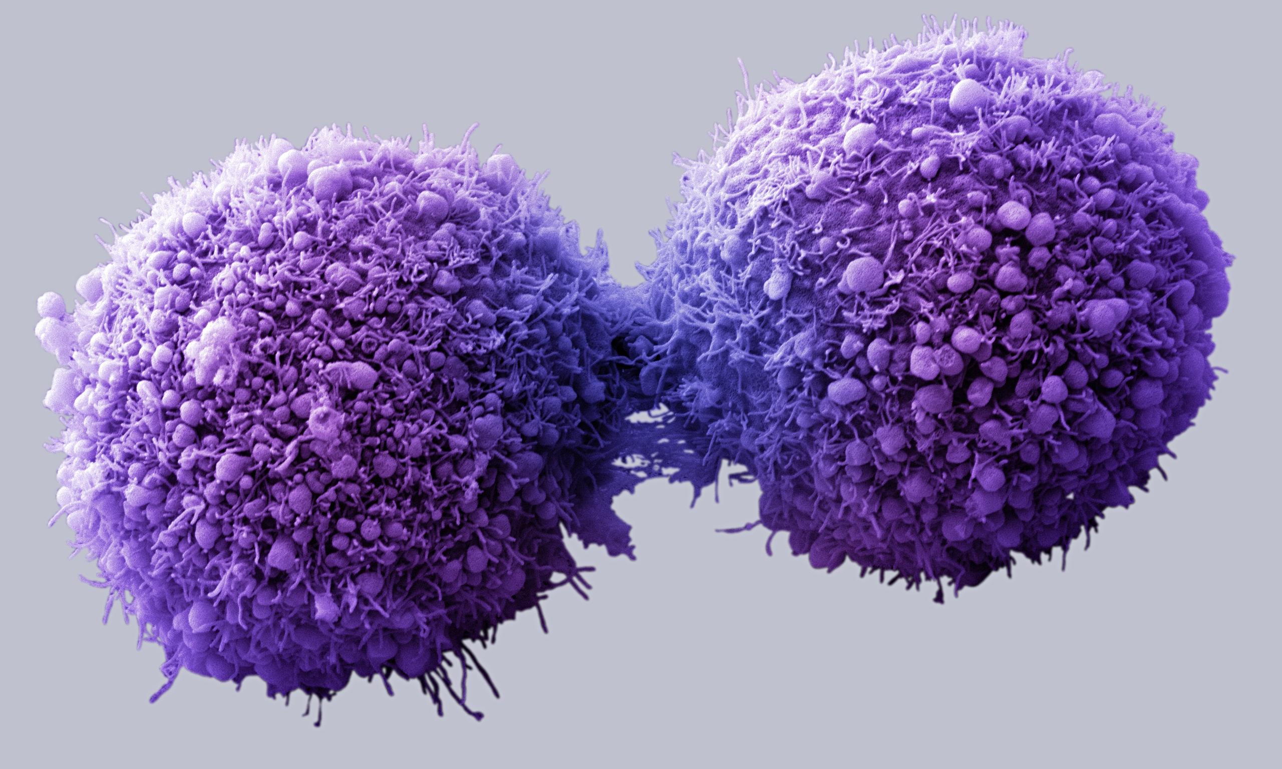 Como bloquear a multiplicação de células cancerígenas e revertê-las em saudáveis