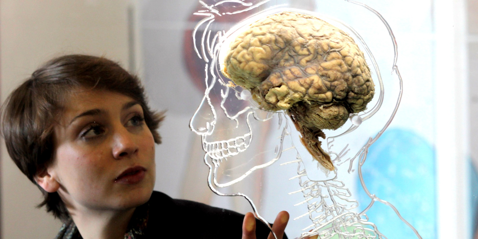 O mais completo cérebro humano cultivado em laboratório