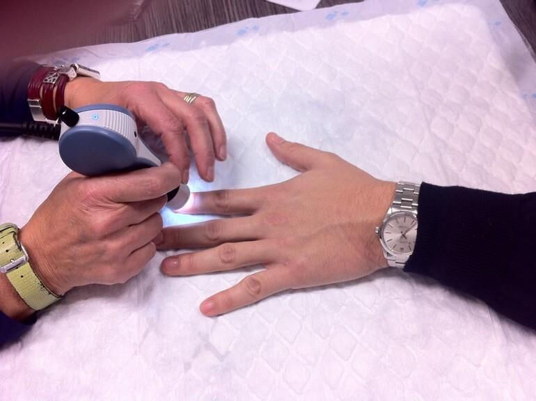Pacientes irão monitorar seus glóbulos brancos, em casa, sem agulha e sem dor