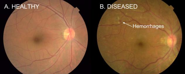 ai-oftalmo